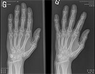Maladies - Groupe de recherche en rhumatologie et maladies osseuses